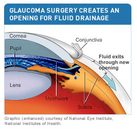 To Increase Outflow Of Internal Eye Fluid An